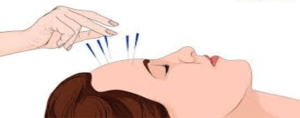 Acupuncture-for-Migraine