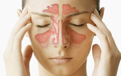 Chiropractic Adjustments for Sinusitis